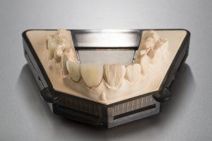 Zirconium dioxide - Implant