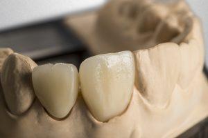 Zirconium dioxide - Dental implant
