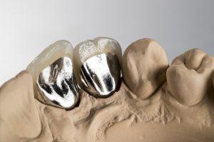 Dentist - Crown