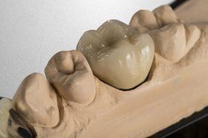 Crown - Dental implant