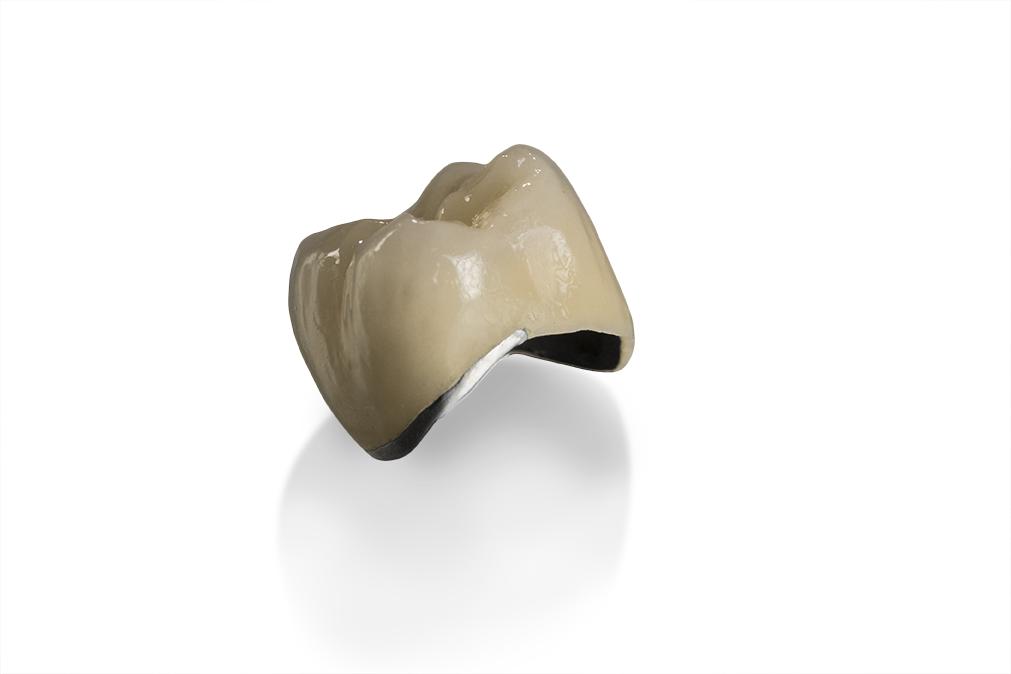 Crown - Dental laboratory